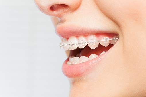 Braces and Bruxism Do Not Mix